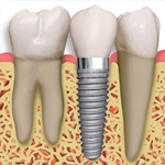 Dental Implants vs. Dentures: Which One is Right for You?