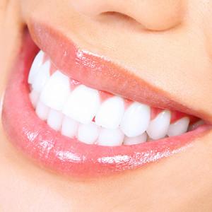 teeth-white-square-300x300.jpg