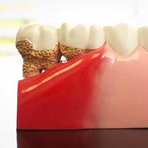 square-gum-disease1-300x300.jpg