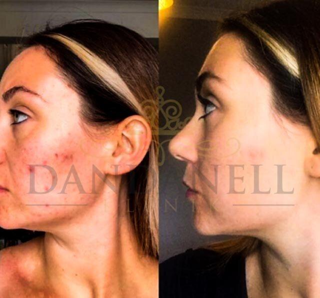 Roskilde SkinPen behandlinger klinik Dandanell-7.jpg