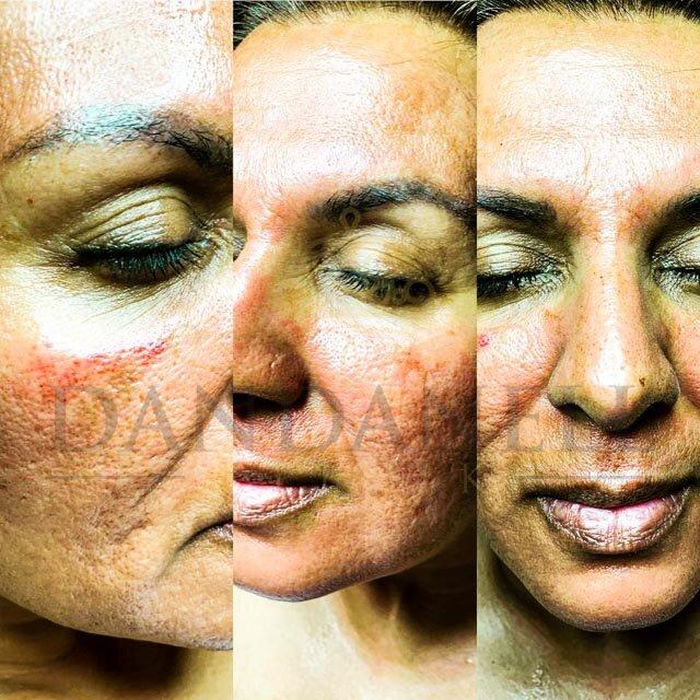 Roskilde SkinPen behandlinger klinik Dandanell-6.jpg
