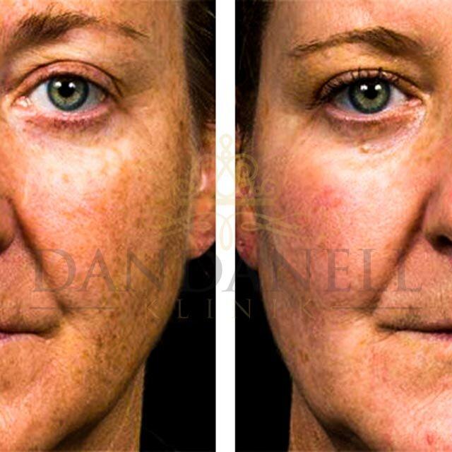 Roskilde SkinPen behandlinger klinik Dandanell-5.jpg