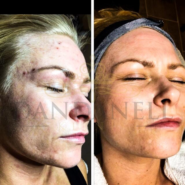 Roskilde SkinPen behandlinger klinik Dandanell-3.jpg