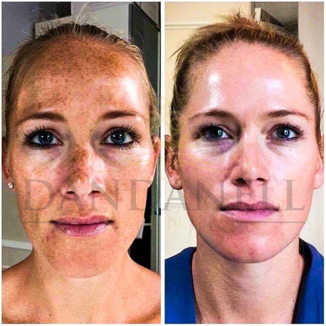 Roskilde SkinPen behandlinger klinik Dandanell-2.jpg