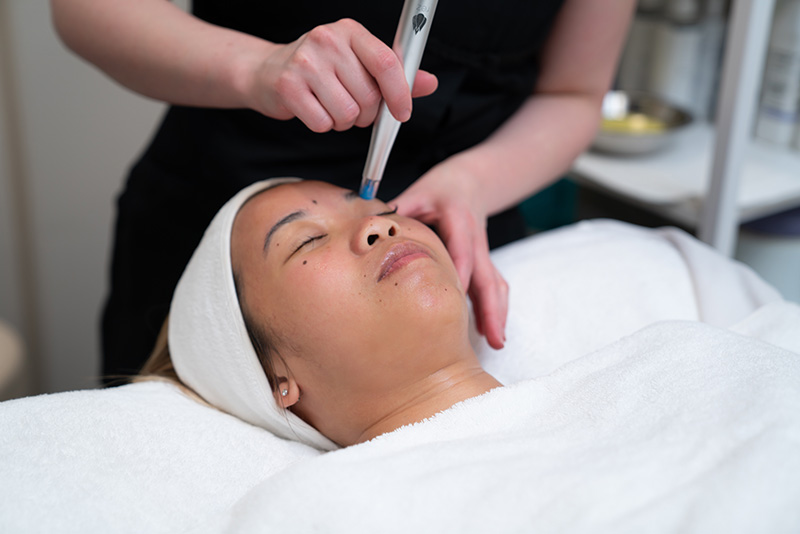 reZENerate facial ~ $125 - This facial uses nano-technology that creates thousands of microscopic permeations on the surface of the skin & infuses serums deep down in the skin where it immediately starts activating. Drastically improves wrinkles, acne, scarring & hyperpigmentation while increasing circulation for a firmer, more lifted appearance. (upgrade to XO8 serum - $20)BOOK NOW__________________________________