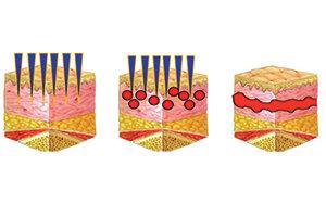 Vivace - Collagen.jpg