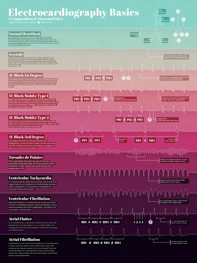 Electrocardiography Basics infographic