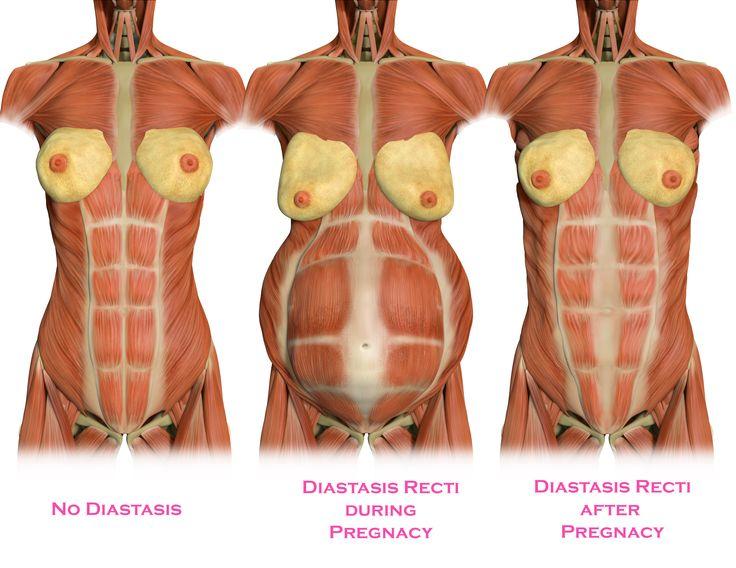 diastastis.jpg