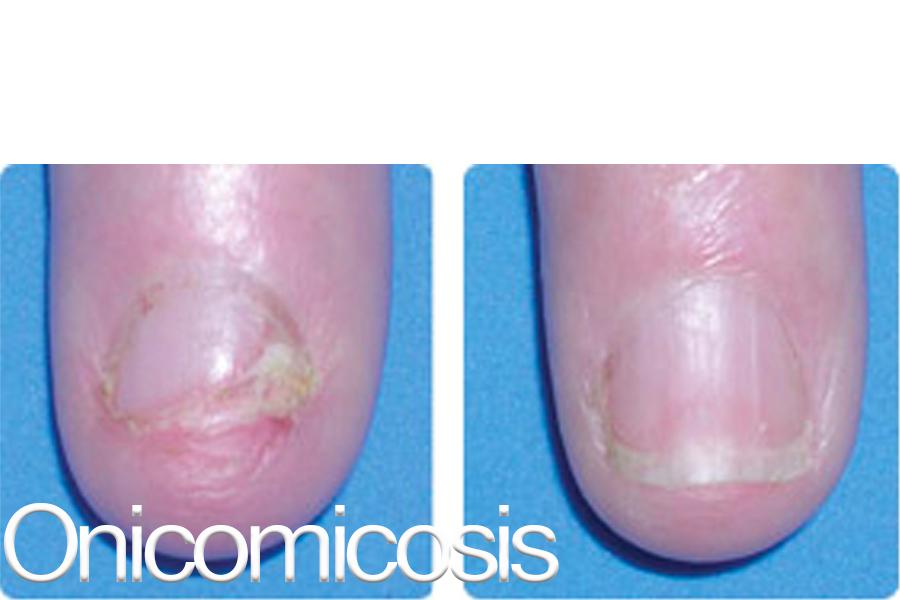onicomicosis111.jpg
