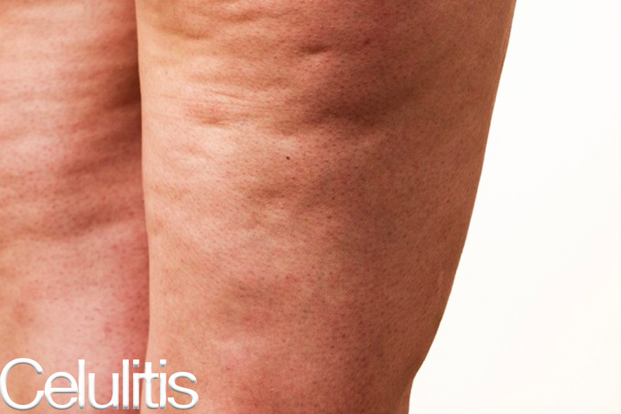celulitis1.jpg