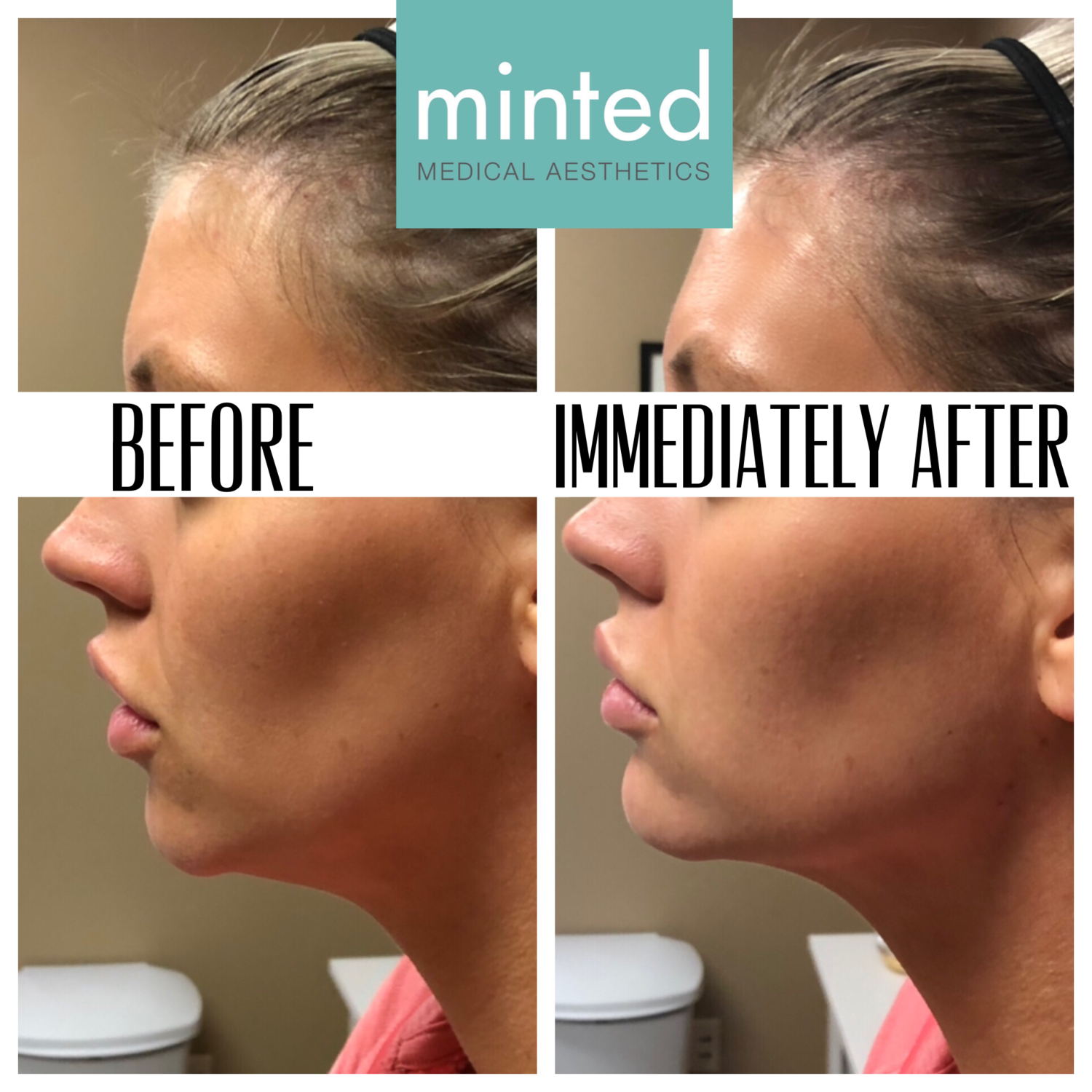 Chin & Jawline Filler.PNG
