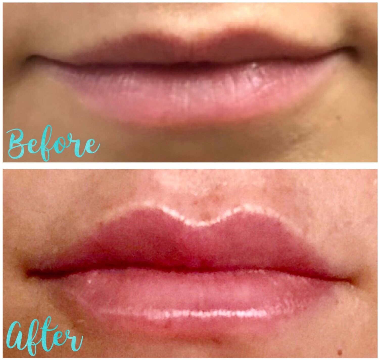 Lip Filler 1.jpeg
