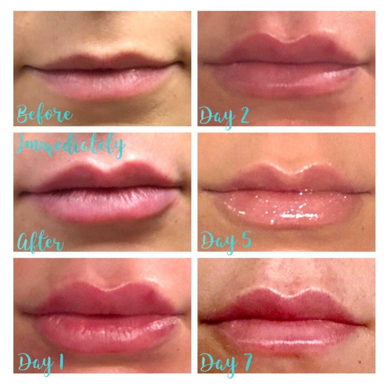 Lip Filler 2.jpeg
