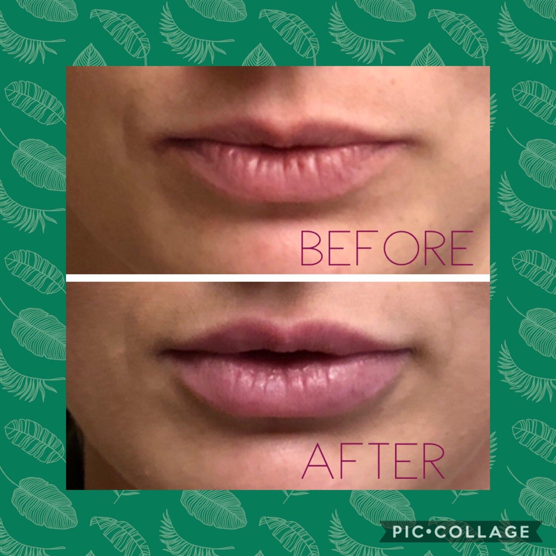 Lip Filler 6.JPG