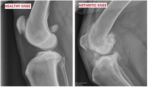 arthritic-knee.jpg