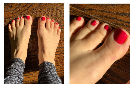 Actual photos of my toes today.