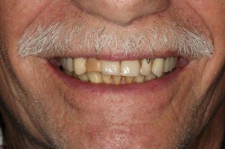 Norberts Teeth.png