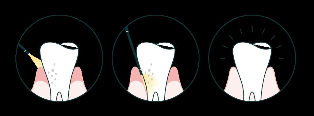 Perisocopy offers a far less invasive alternative to surgery.