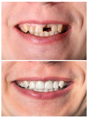 complete-and-partial-denture.jpg