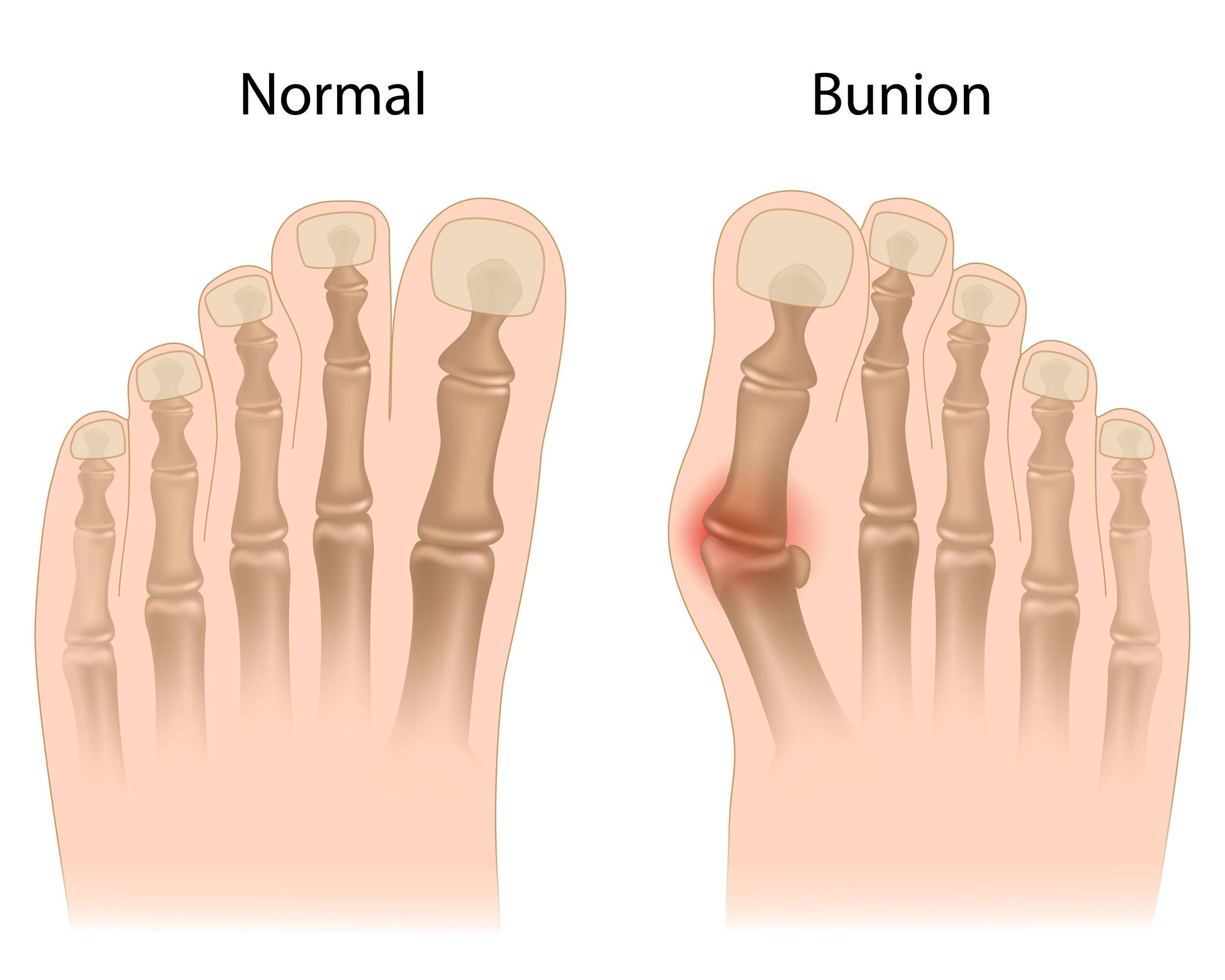 amarillo, tx podiatrist treats bunion pain