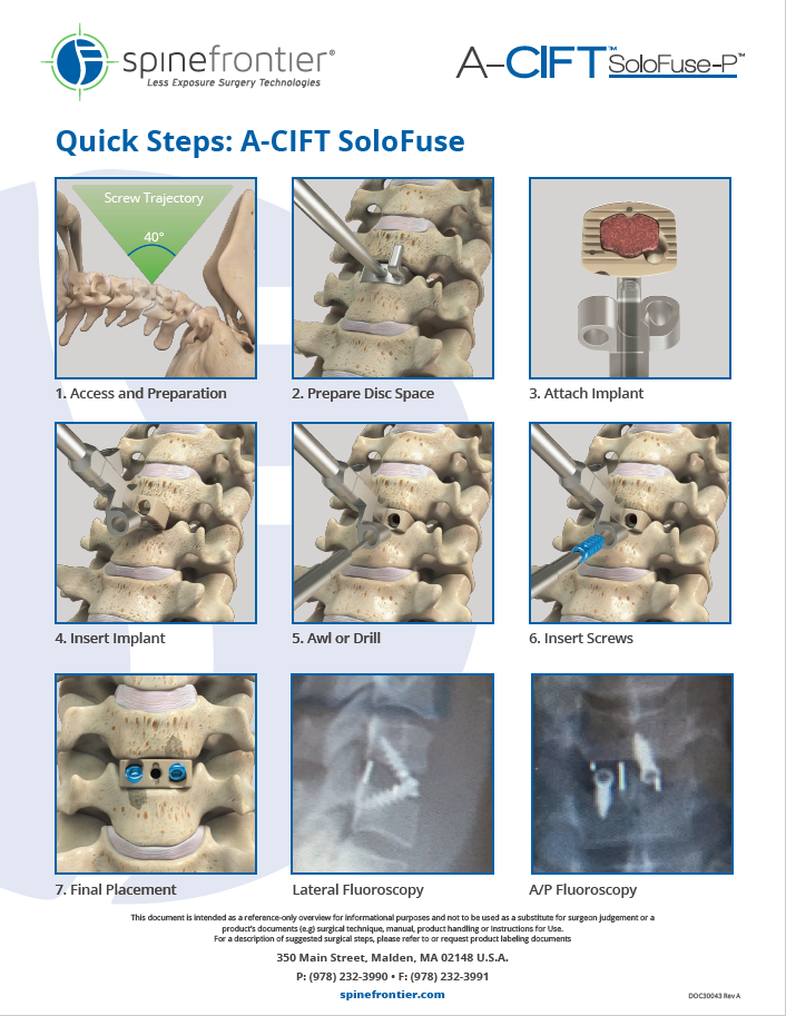 A-CIFT SoloFuse Quick Steps