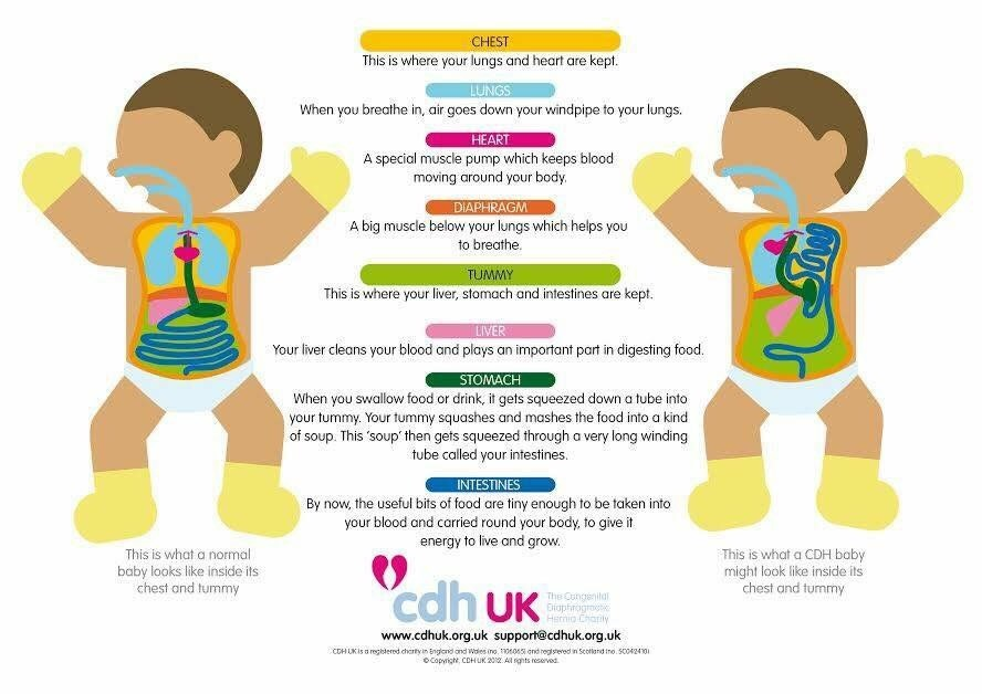 Infographic used with the permission of CDH UK.