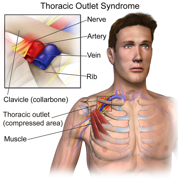 580px-Thoracic_Outlet_Syndrome.png