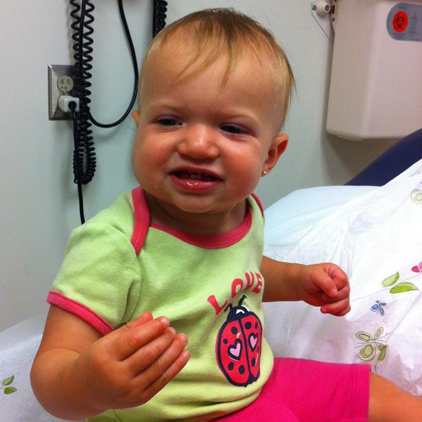 Hemangioma treatment complete - no more Propanolol @ohbotherblog
