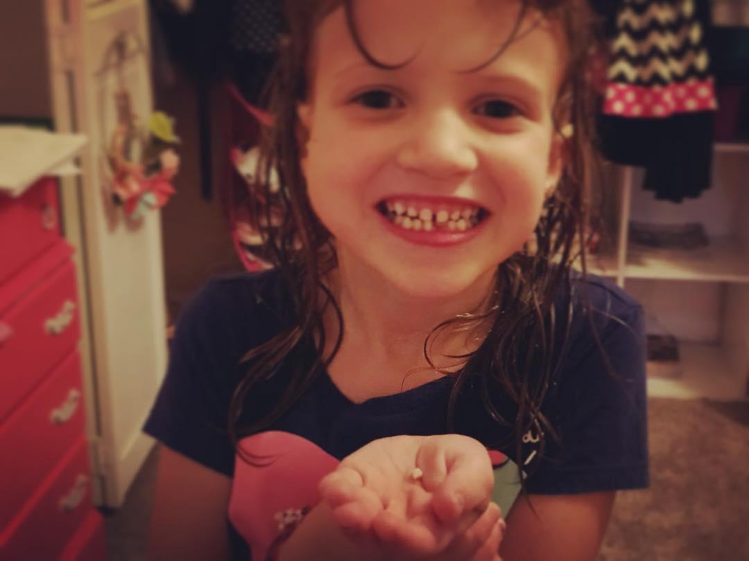 3 teeth lost