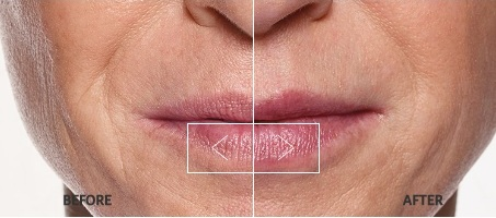Restylane-before-after.jpg