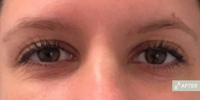 EyelashOut_1After.jpg