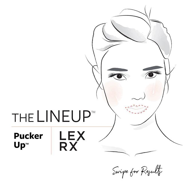 LexRx Pucker Up™️ ➖ swipe for results. . #boston #beaconhill #southie #seaportboston #botox #lipinjections #lipfillers #skincare #injectables #nursepractitioner #bestofboston