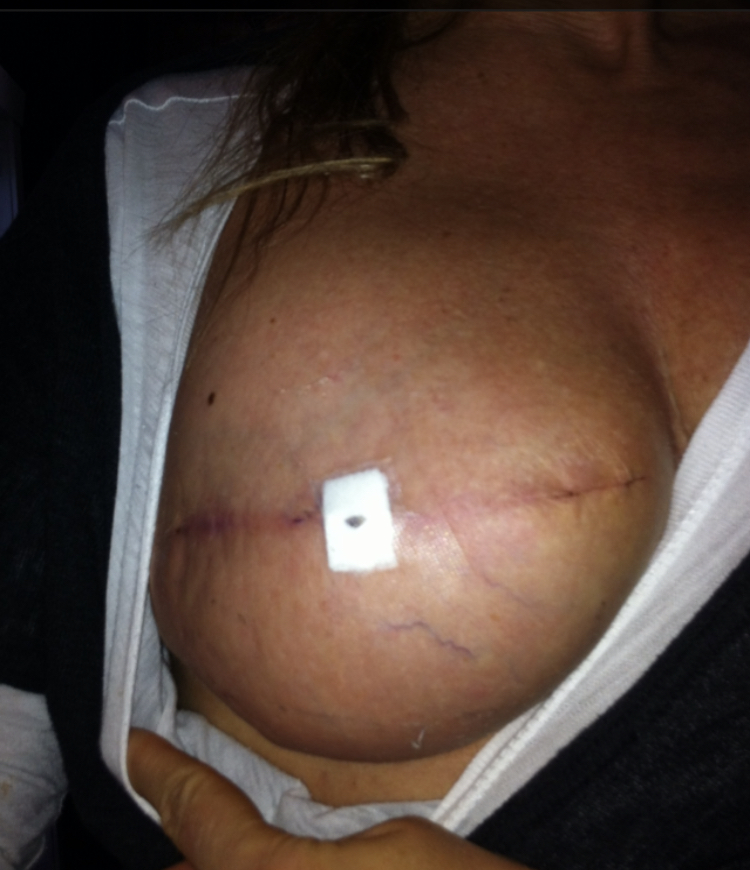 This is my surgery with textured implants after the expanders came out.