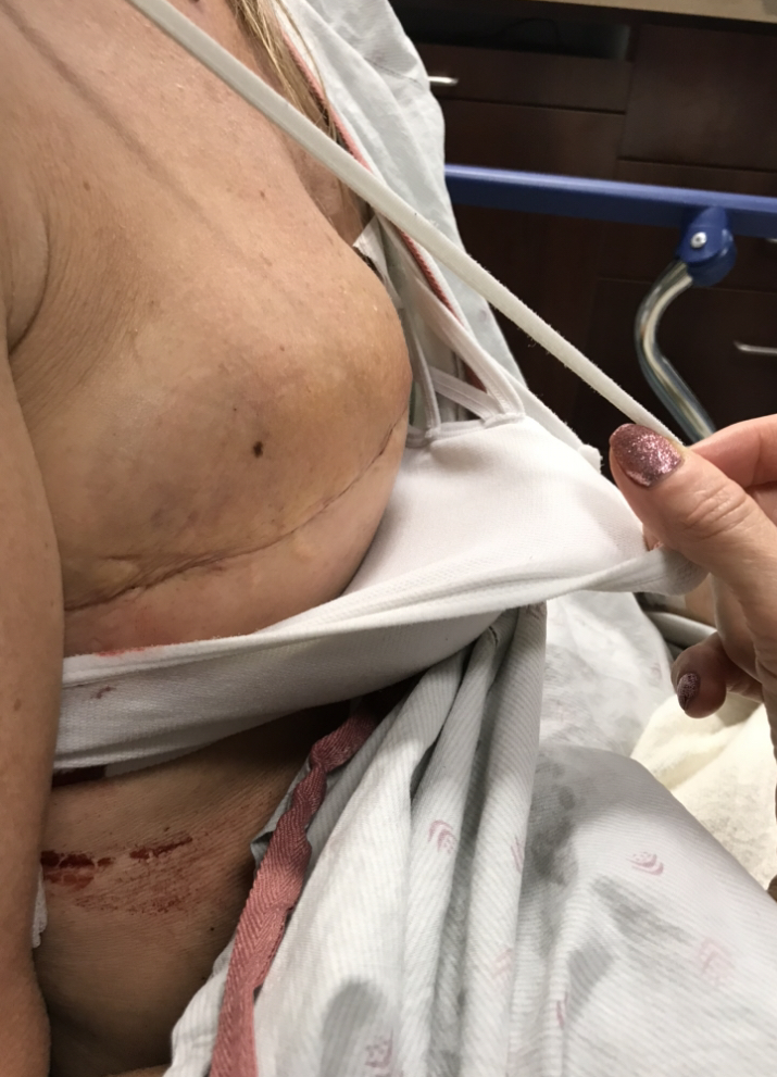 """I was back """"post mastectomy"""" 9 days previously to a pool of blood the size of my implant used to be!!!! It kept growing till my emergency surgery …I kept screaming OWE every time it would pool and pop…ohhh the pain it was…. I can't even believe I went through this!!!"""