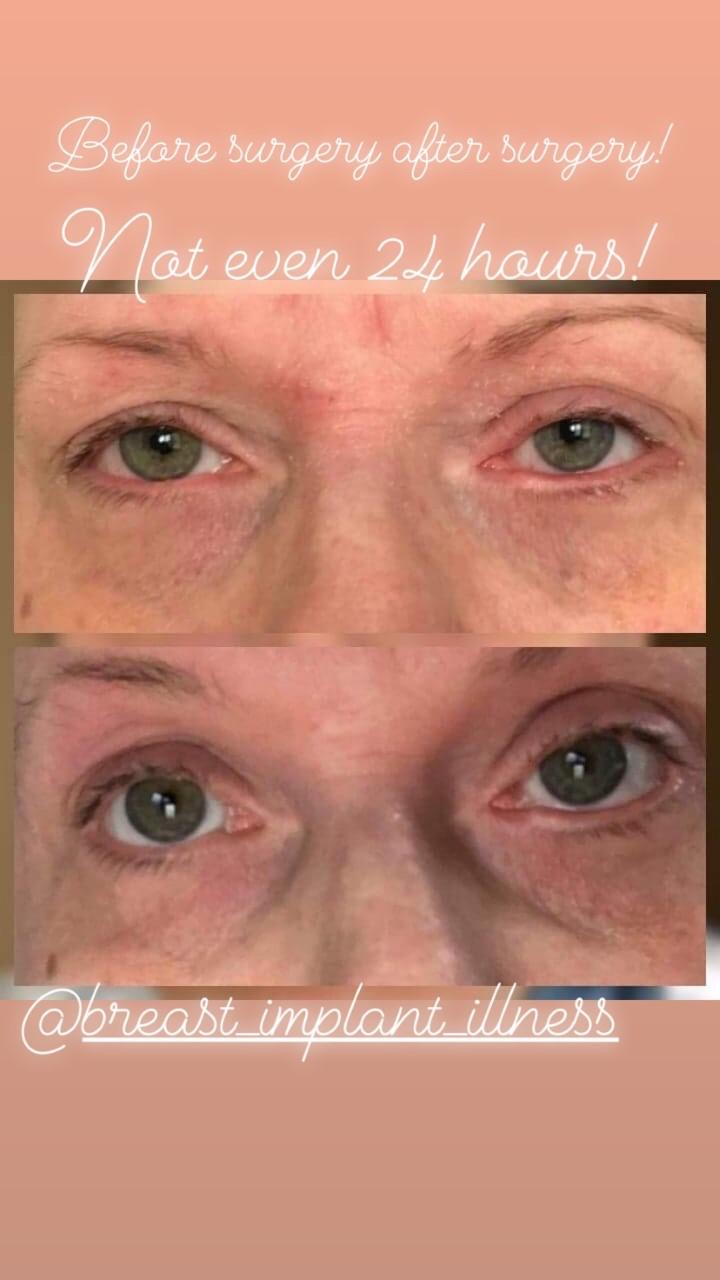 Rachel Blaze - eyes - before and after surgery.jpg