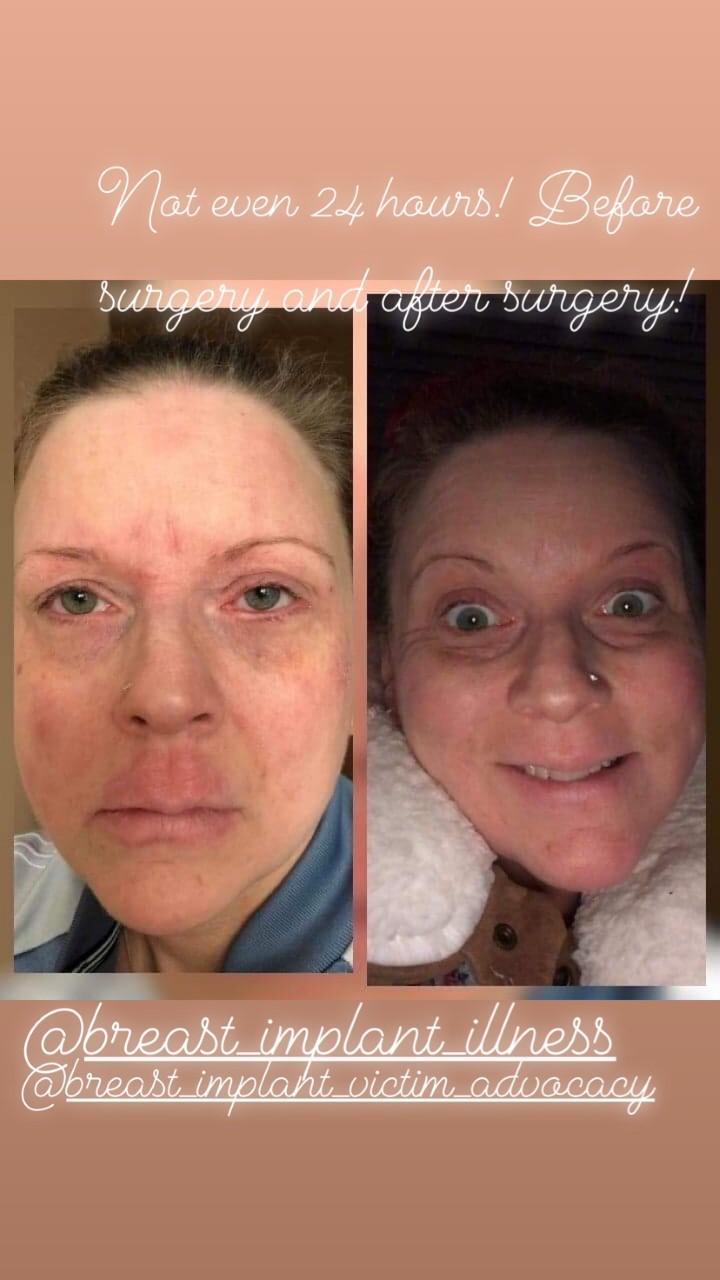 Rachel Blaze - face - before and after surgery.jpg