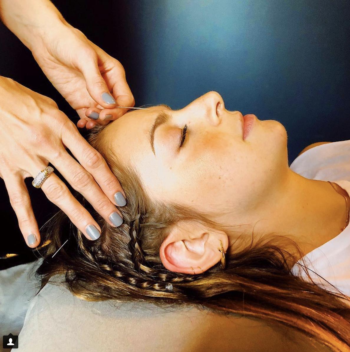 Acupuncture - ancient medicine goes Modrn