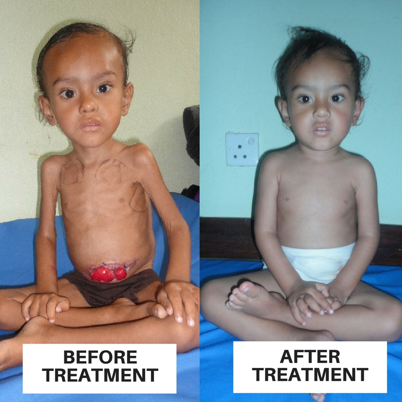 BEFORE & After TREATMENT.jpg