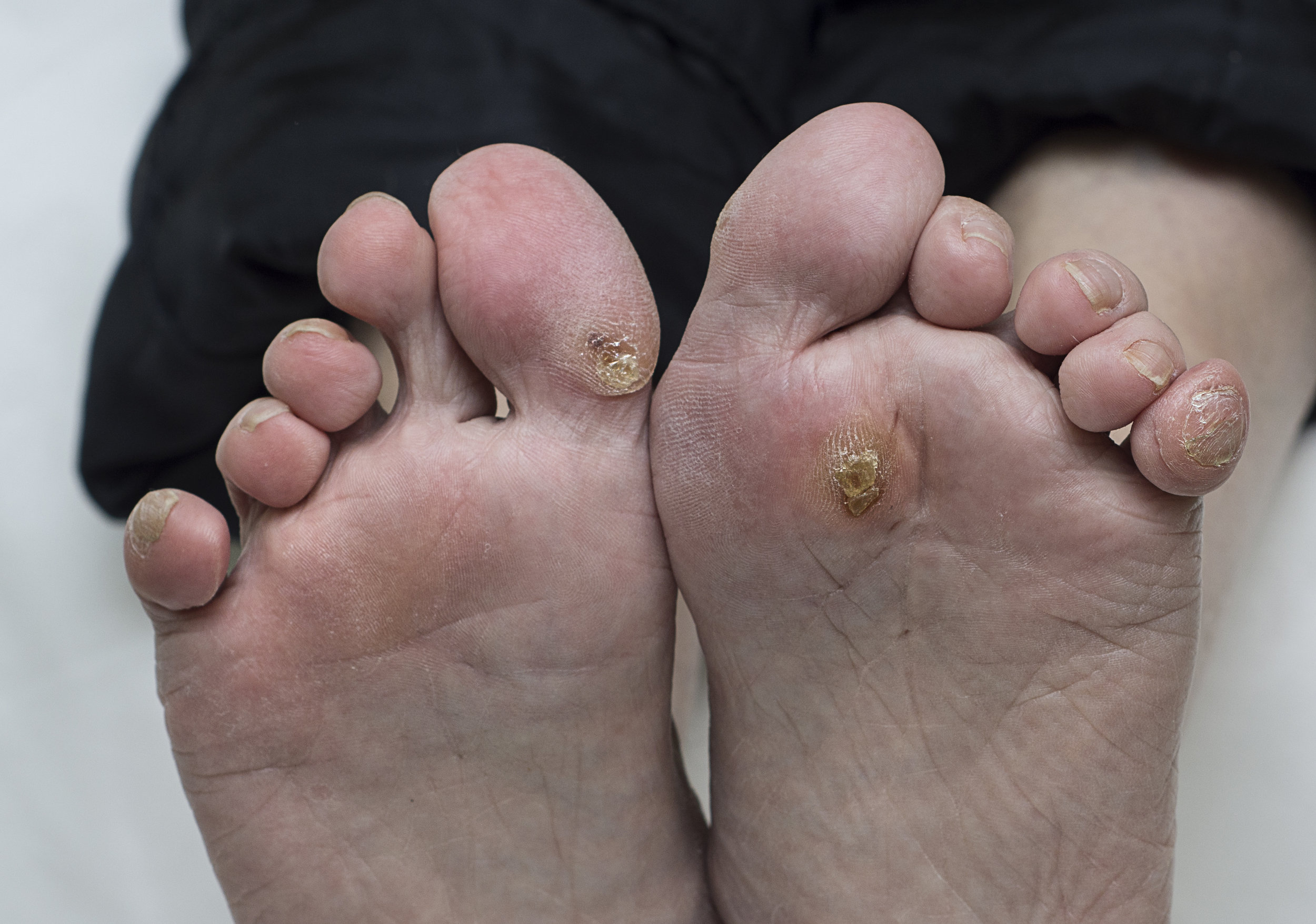 We can help your feet! - you may think your feet are bad, but we do see feet a lot worse than yours. Don't let embarrassment stop you from getting treatment