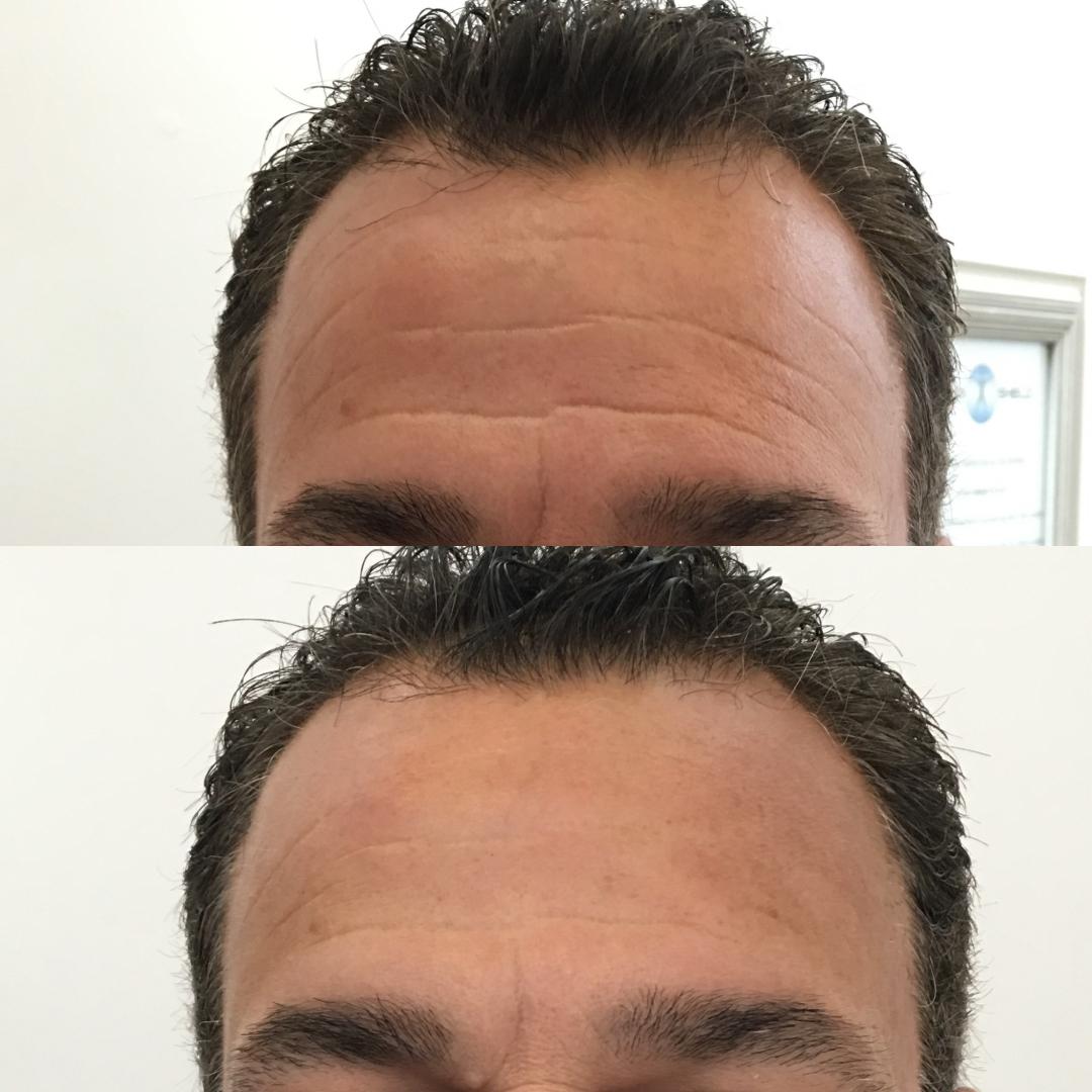 Cryoskin Facial — Cryo Shield Therapy