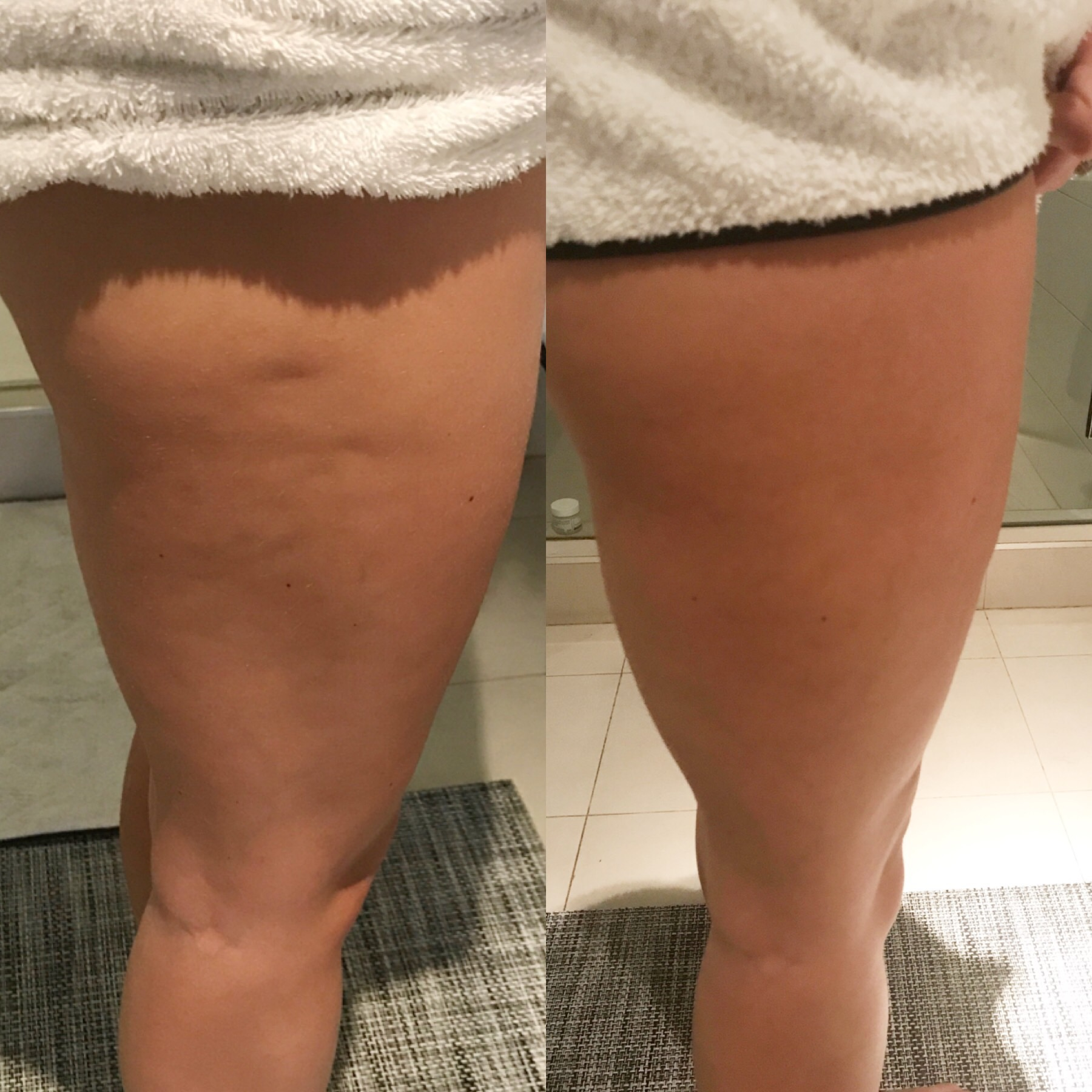 Cryoskin Toning Before After 1.JPG