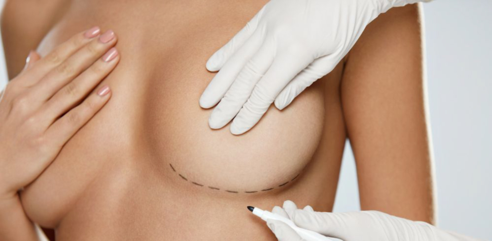 BREAST AUGMENTATION & BREAST IMPLANTS -