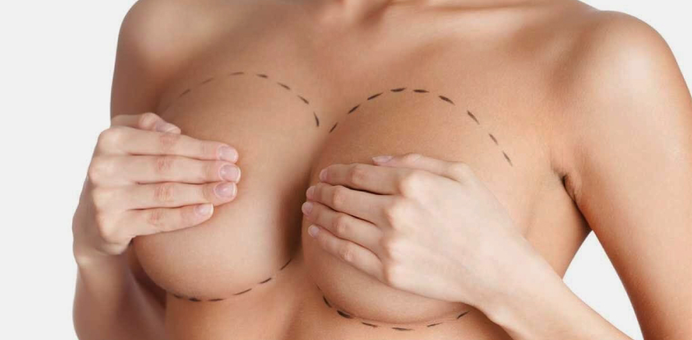 BREAST REDUCTION -