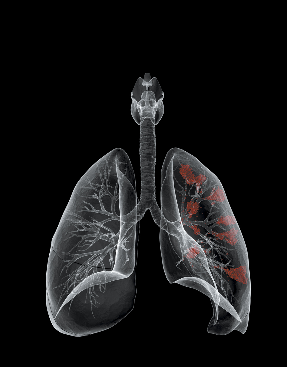 Newsweek_lung_cover_final.jpg