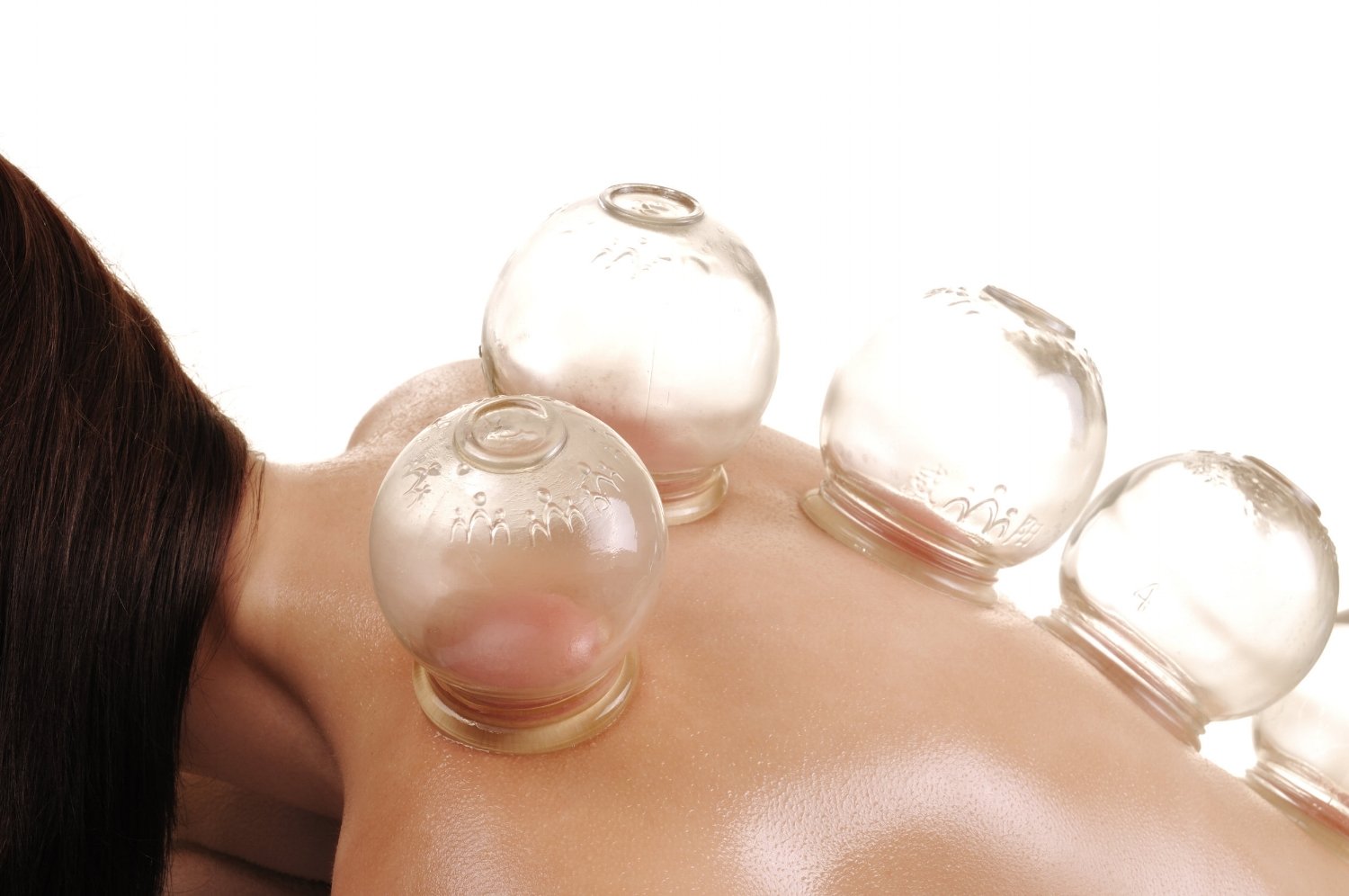 newpaltz-acupuncture-cupping-therapy.jpeg