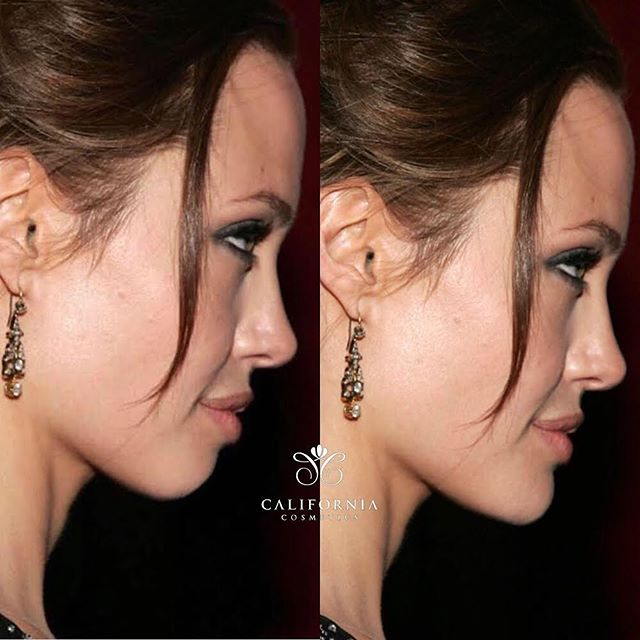 Symmetry is everything! We're able to see #angelinajolie 's chin inverted ever so slightly. As you can see it made a HUGE difference in her overall appearance. 💯❤️ ———————————————— Chin and Jawline augmentation helps bring better symmetry to a persons face! We like to use Juvederm Voluma XC, which lasts up to 2 years 💉💉💉💉 DM for more info.  #symmetry #californiacosmetics #injectables #dermalfiller #jawline #chin #chinaugmentation #sideprofile #beautytips #beauty #lipfillers #lipinjections #jawlinefiller