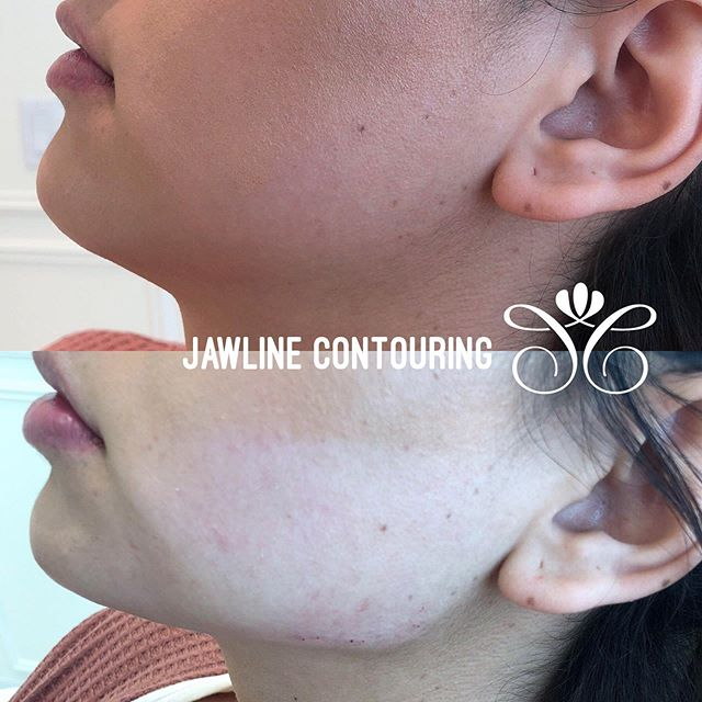 "Jawline Contouring helps give that beautifully structured look without makeup!!! 💉💯✨✨✨✨✨ If you're tired of contouring daily this procedure is for you! ——————————————— This patient used 1 syringe of Juvederm Voluma XC in her chin and 2 syringes of Juvederm Voluma to define her jawline. ——————————————— We can give you that sculpted, defined look with dermal filler that lasts up to 2 years! ——————————————— DM with questions or push the ""call"" button in our bio to talk to our knowledgeable aesthetic specialists  #californiacosmetics  #jawline #jawlinecontouring #contouringandhighlighting #contour #skin #lipinjections #juvederm #chin #chinaugmentation #chinfillers #injections #dermalfillers #dermalfiller #jawlinegoals"