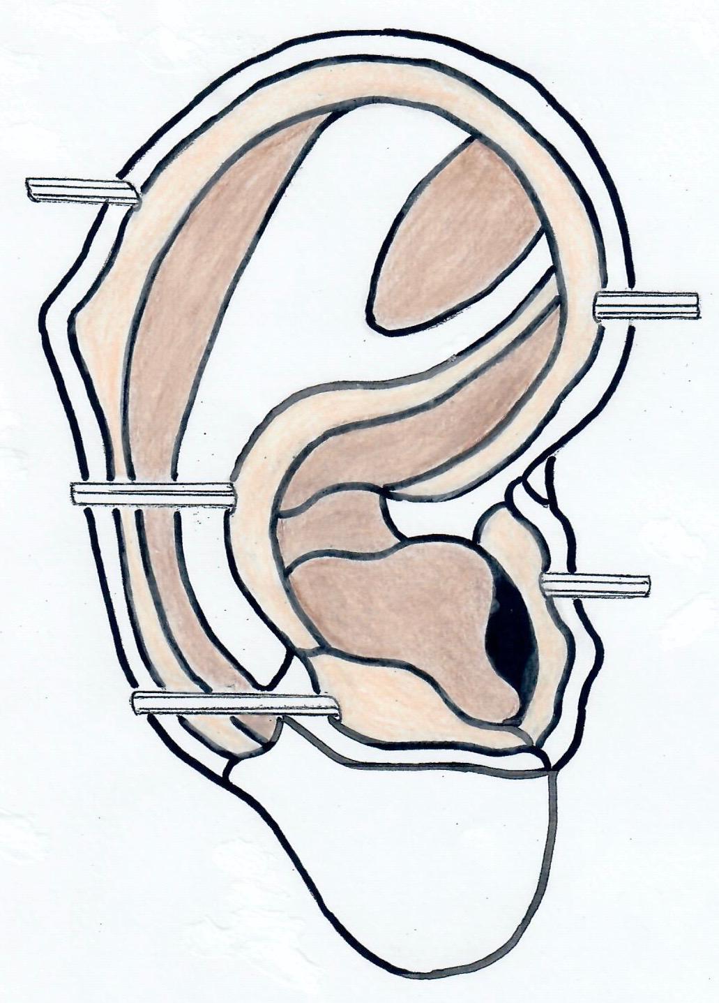 Ear - deep-3.jpg