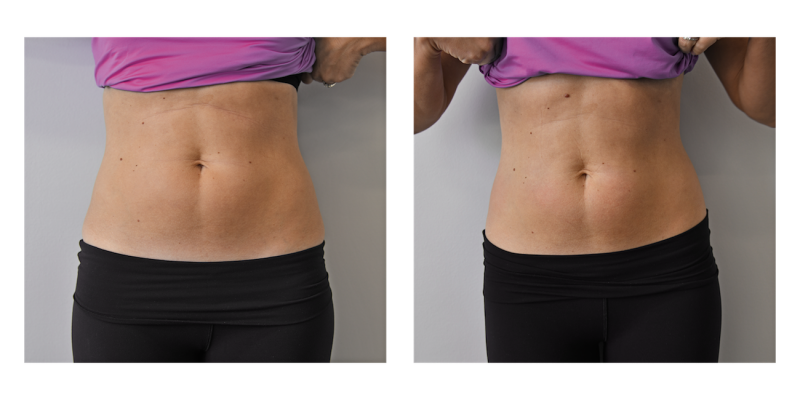 cryoskin-before-after-female-02-800x400.png