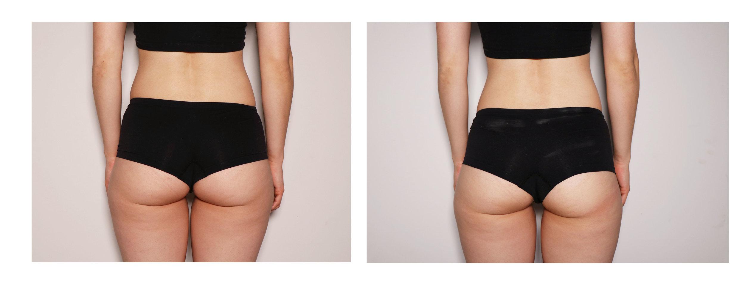 Female Butt Toning.jpg